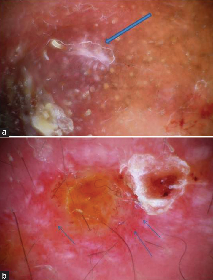 Figure 5: (a) The dermoscopic examination of the lesion shows starburst pattern (blue arrow). (b) The dermoscopic examination of the lesion shows dotted vessels (blue arrow)